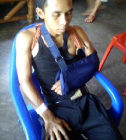Kondisi Bambang Makin Membaik, Setelah Insiden Kecelakan Yang Menimpanya