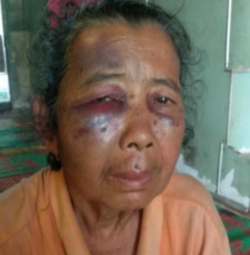 Keluarga Ngotot Nenek Simi Memang Diserang Harimau, Tapi Harimau Kumbang