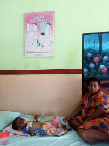 Roni Bayi Usia Dua Tahun Ini Derita Gizi Buruk Di Rohil