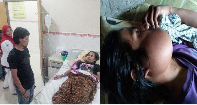 Malik Siregar Jenguk Riko Kerumah Sakit, Mulut Pemuda Ini Sudah 5 Tahun Membengkak