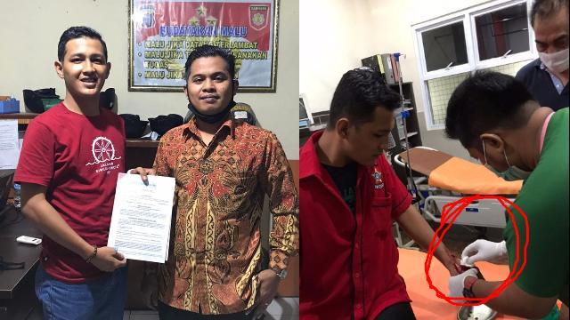 Baku Hantam di Musda Golkar X Inhu, Sekretaris SOKSI Berdarah, Panitia dan Yopi Arianto Dilaporkan